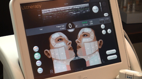 Ultrasound_Imaging_Ultherapy_Device_Web