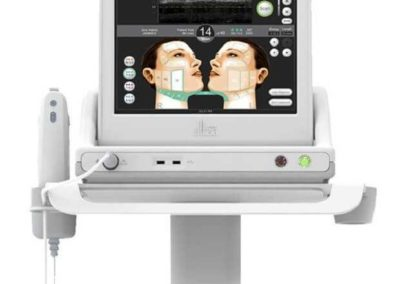 ultherapy2